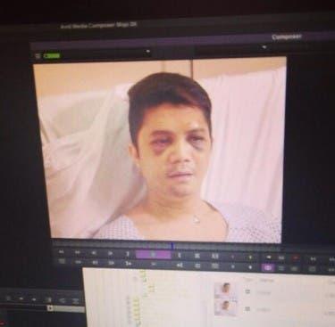 Vhong Navarro Speaks Up: 'Binaboy Nila Ako!'