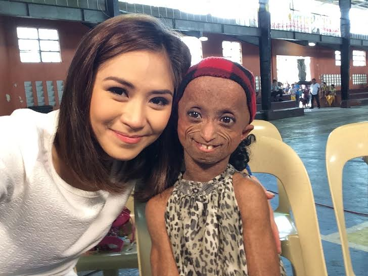 Progeria Patient with Sarah