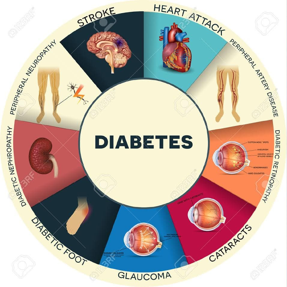 about diabetes mellitus To put it simply, you have diabetes mellitus when too much sugar is circulating in your blood stream sugar, also known as glucose, is an important and necessary fuel for our bodies.